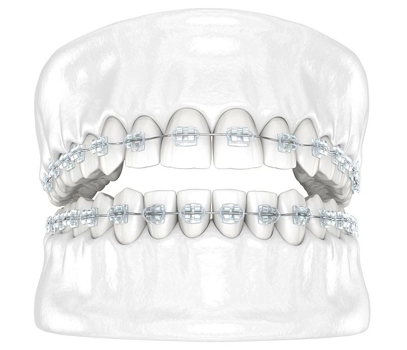 orthodontics education